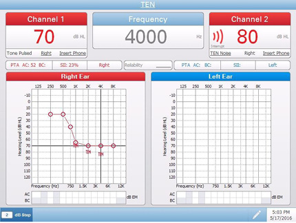 Pello Special Tests Audiometry Screen