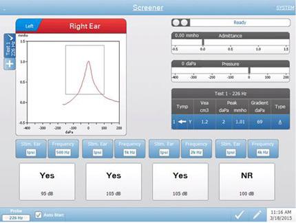 tympstar-pro-testing-screen