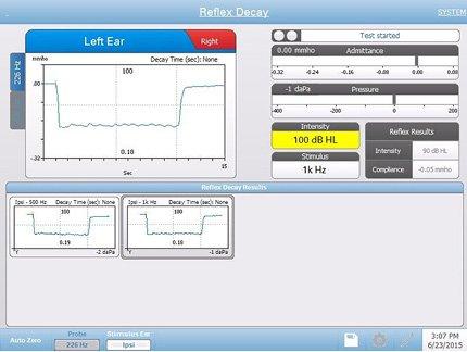 Acoustic Reflex Decay Testing Screen