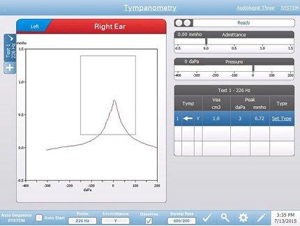 Diagnostic tympanometry testing screen