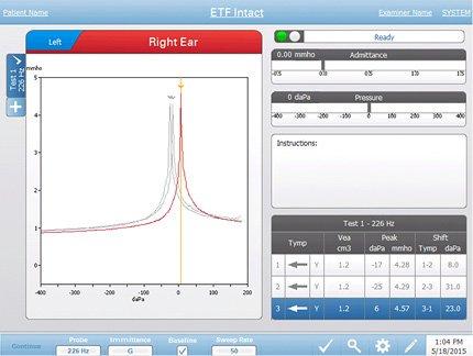 Eustachian tube function testing screen