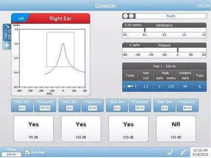 Screening Tympanometry Testing Screen