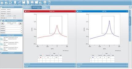 GSI Suite Tympanometry Data