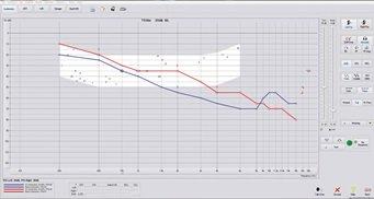 stealthscreenshot1_audiometry_2