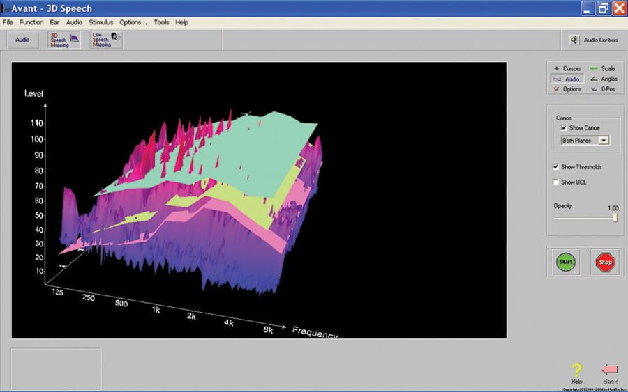 3-D Speech Mapping