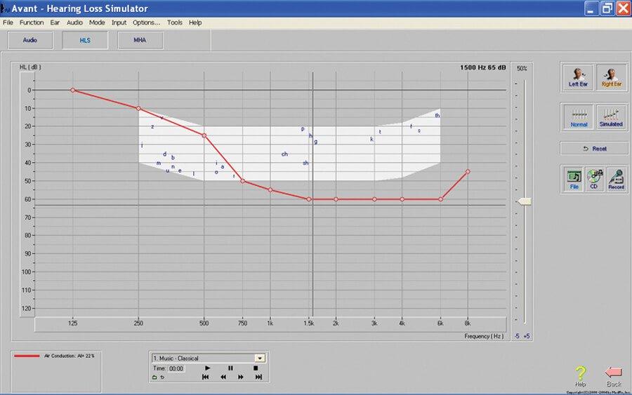 Hearing Loss Simulator