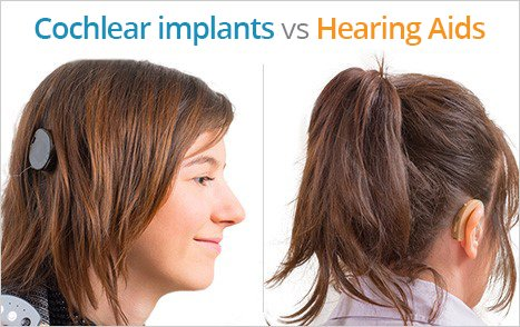 cochlear-implants-vs-hearing-aids